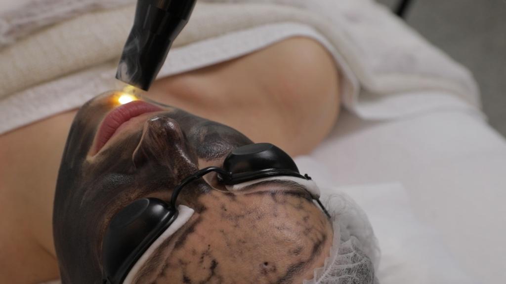 Carbon Peeling oder auch Hollywood Peeling genannt. Carbon Peeling ist eine effektive Methode zur Tiefenreinigung von Poren. Es ist in der Lage, die erweiterten Poren zu verkleinern, aus zu reinigen, sowie Entzündungen zu reduzieren und die Hautfarbe zu nivellieren. Bereits nach der ersten Behandlung sieht die Haut erfrischt aus.